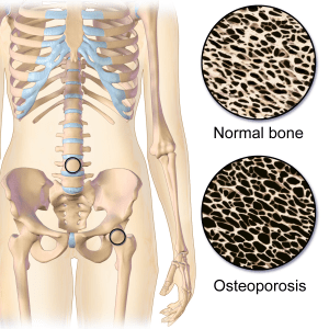Magnesium en osteoporose